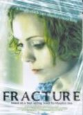 Fracture pictures.
